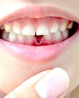 denti-da-latte-denti-permanenti