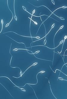 spermiogramma