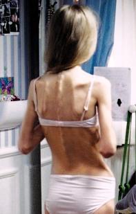 allarme-anoressia-tra-le-adolescenti