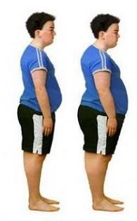 bambini-obesi-hanno-grasso-sul-cuore