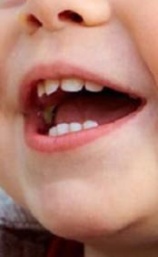 denti-bambini-lavarli-gia-a-1-anno